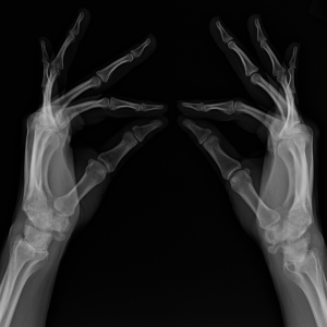 x-ray of hands and wrists